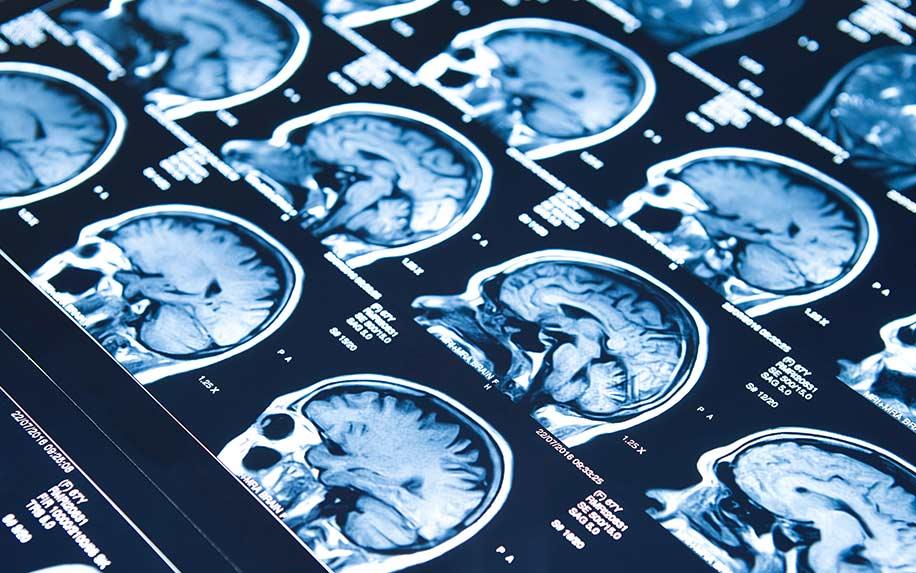 Findings on CBD as epilepsy treatment