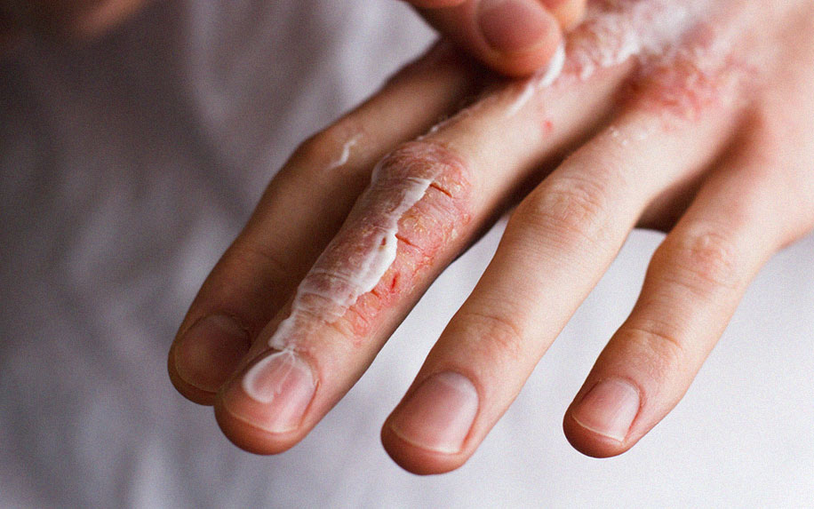 Treating Eczema With cannabis cannabinoids