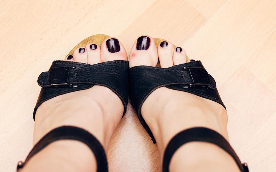 DIY Home blister treatment, CBD Oil
