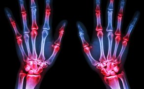 Medical Cannabis - What People with Arthritis Need to Know
