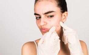 Acne Treatment with CBD Oil, Pro's and Con's