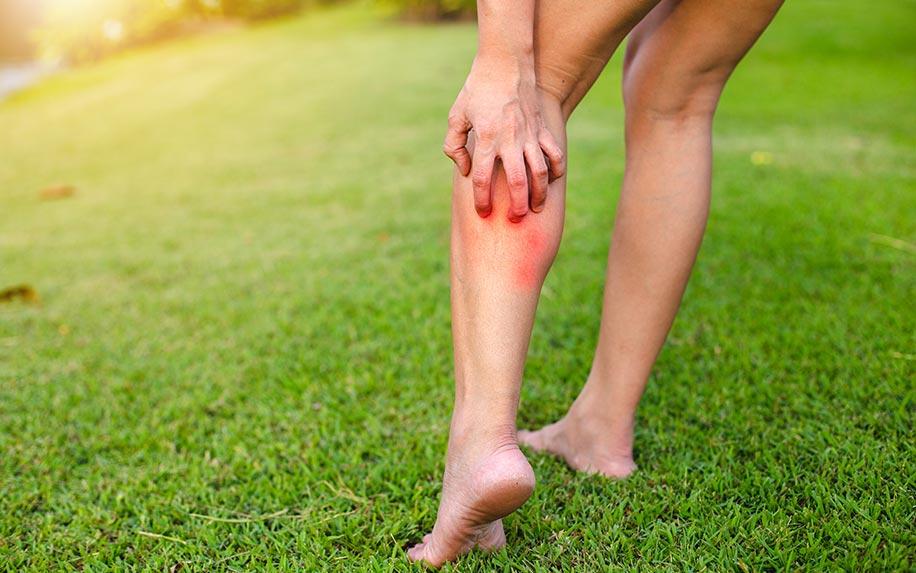 CBD oil helps treat itchy eczema.
