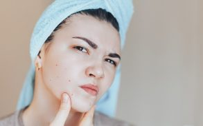 Getting rid of pimples with cannabis