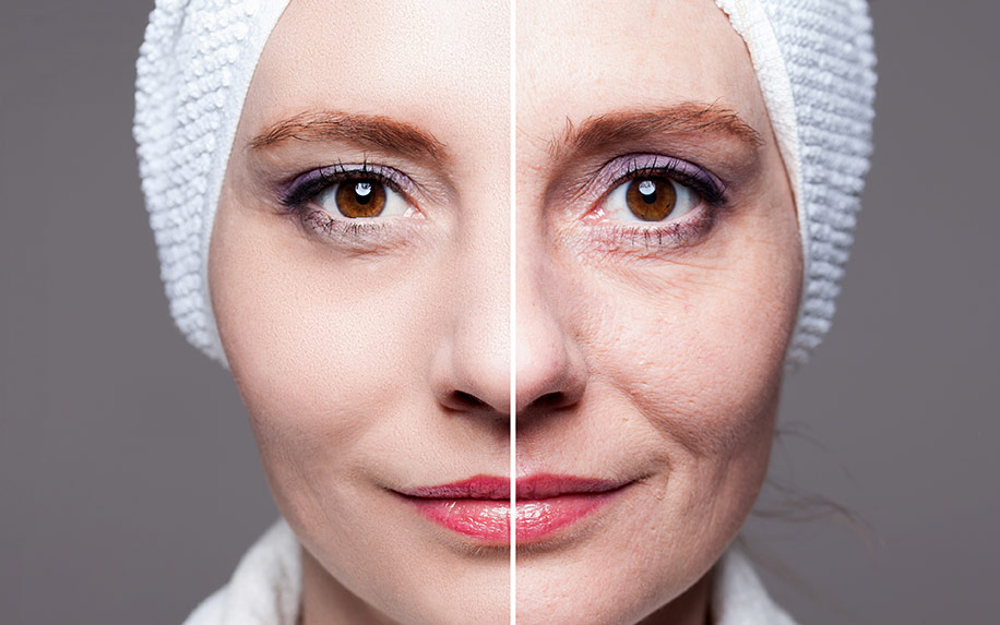 Find out how cannabis can be used to treat your wrinkles.