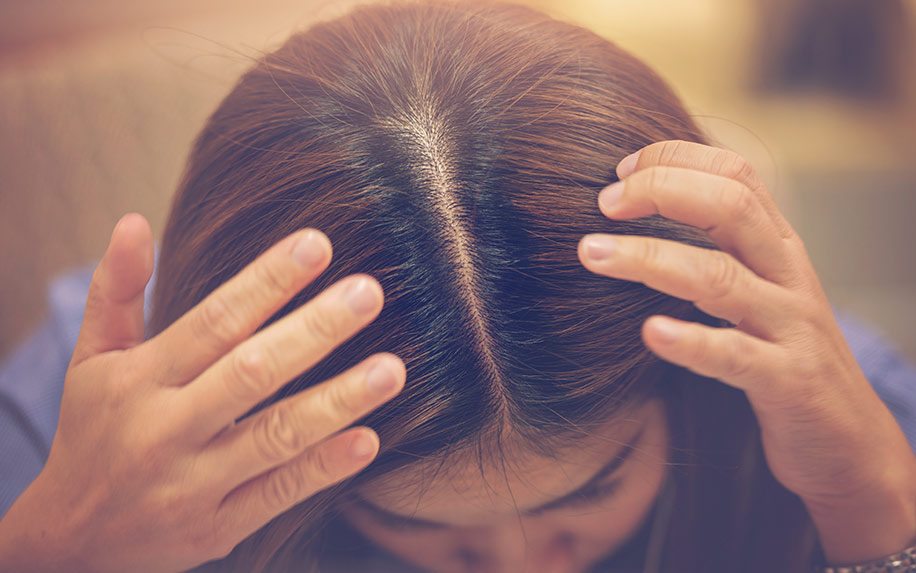 Discover how cannabis terpenes can help your scalp fungus.