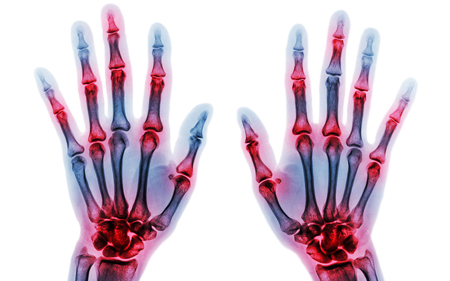 Cannabis study for arthritis treatment.