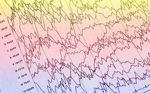 Epilepsy: CBD and Cannabis