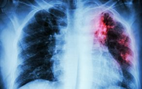 Link between severe lung damage and vaping