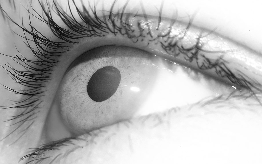How cannabis relieves glaucoma symptoms