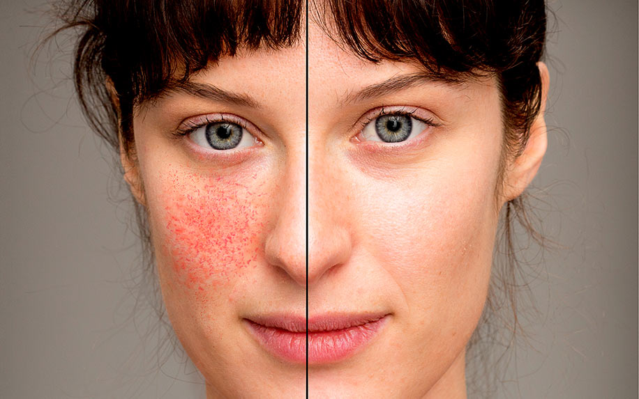 How CBD cream helps treat rosacea
