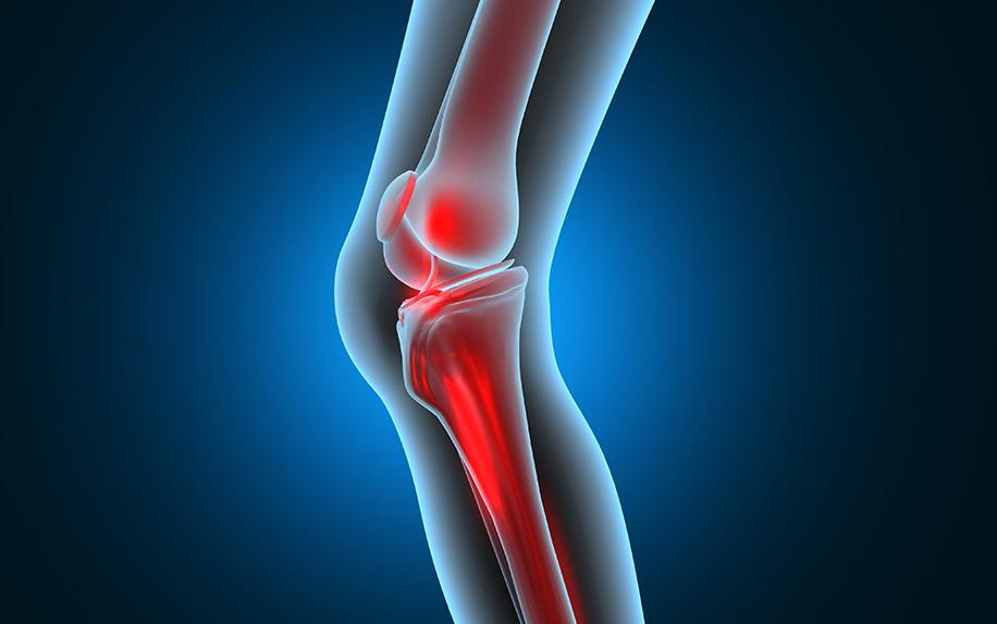 Ways CBD oil can work for arthritis