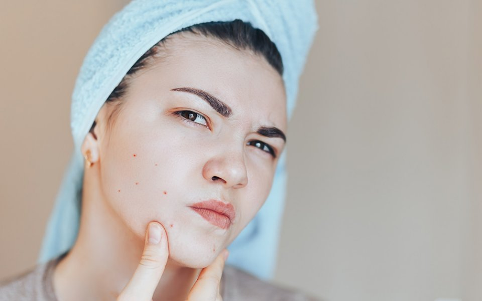 3 Ways to Get Rid of Pimples With Cannabis