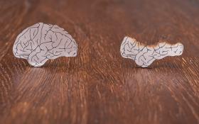 5 Ways Cannabis Can Help Alzheimer's Patients