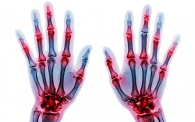 Study: More Patients With Arthritis Say Cannabis Helps