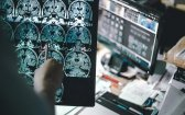A Look At Advanced Brain Aging and Alzheimer's