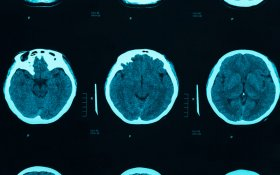 Cannabinoid System as a Target for Neuropathic Pain?
