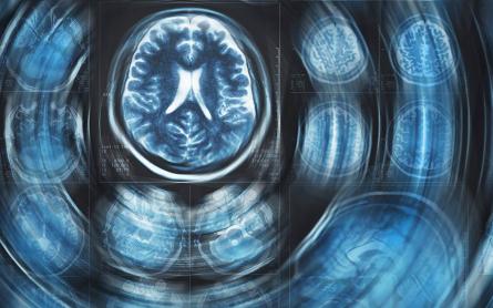 Can Cannabis Prevent Alzheimer's Disease?