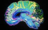 The Latest on CBD Oil for Epilepsy