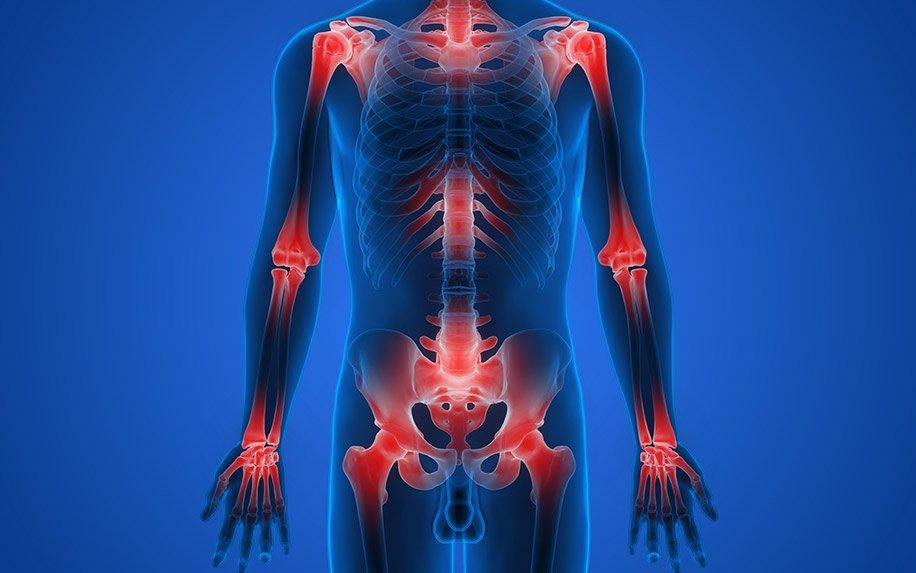 Need a Natural Anti-Inflammatory Treatment? CBD Might Be It