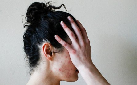 Daily CBD Supplements to Reduce Hormonal Acne