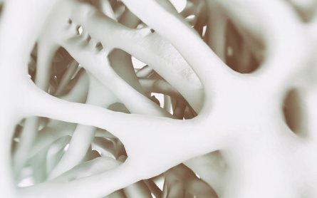 Can Marijuana Reverse Bone Loss with Cannabinoid Treatment?