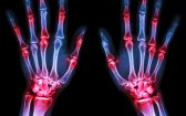 Medical Cannabis – What People with Arthritis Need to Know