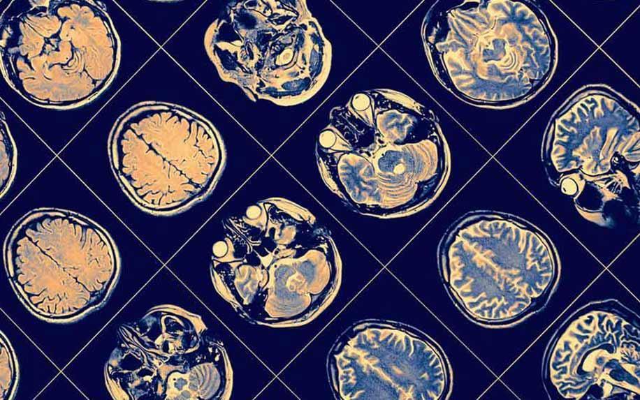 Cannabis Worsens Cognitive Function in Schizophrenia