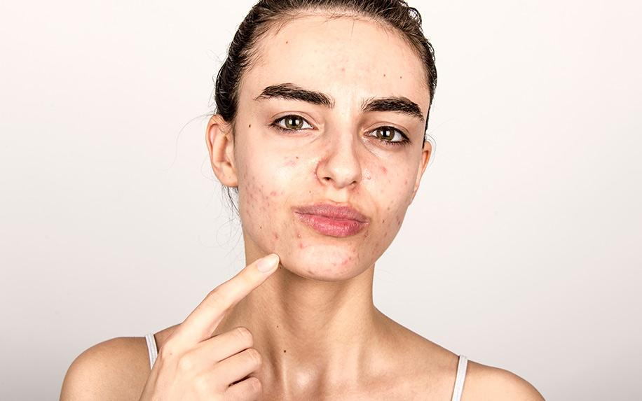 How to Get Rid of Acne Scars Using CBD Oil